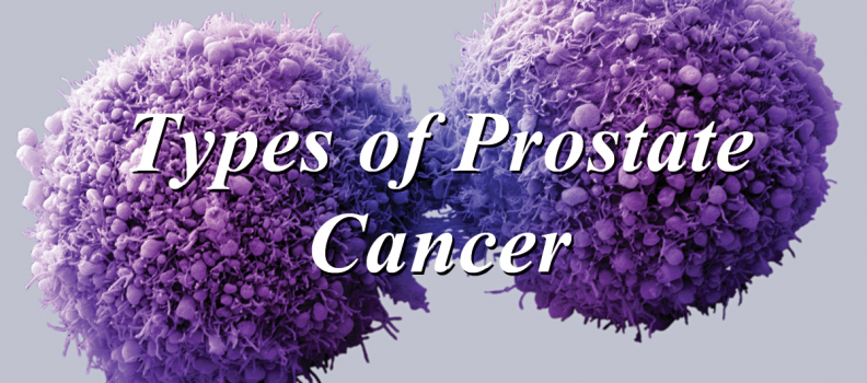 Types of Prostate Cancer