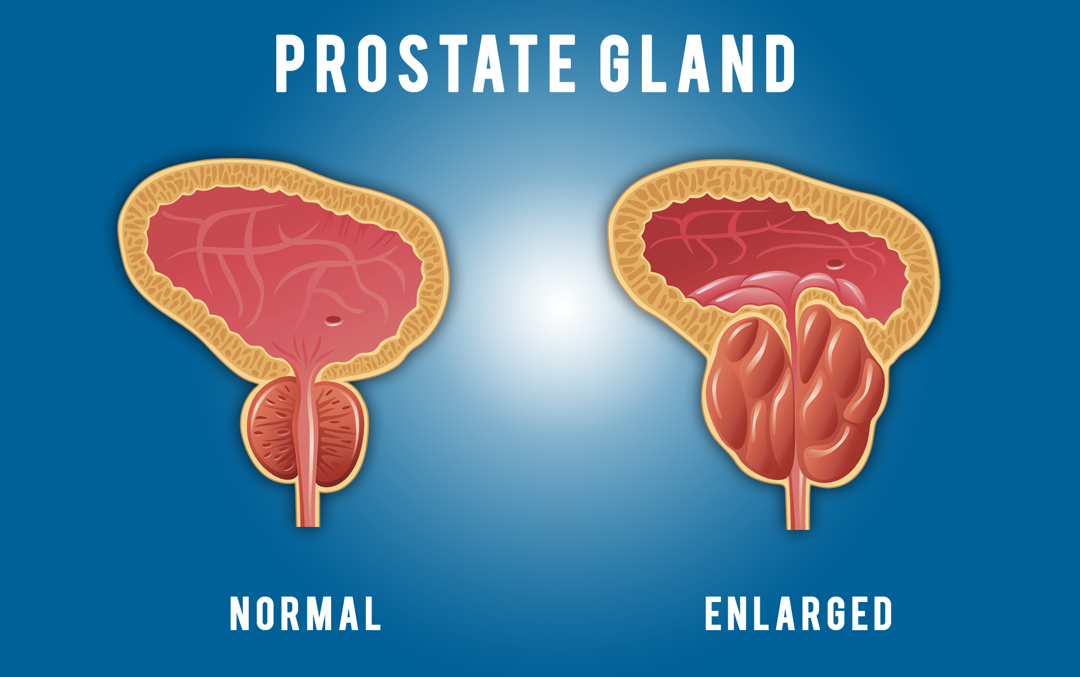 Watch Lower your risk of prostate cancer by 70 video