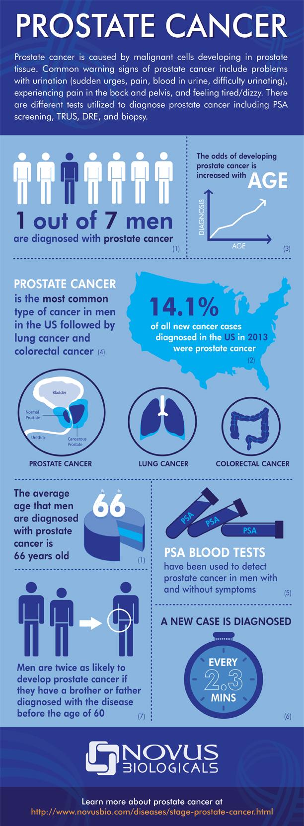 Prostate Caner Infographic