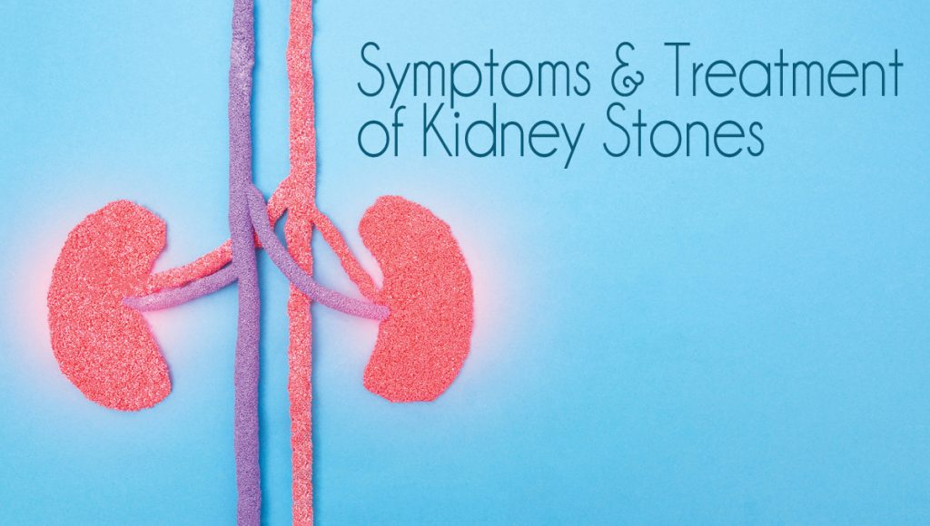Symptoms & Treatment of Kidney Stones