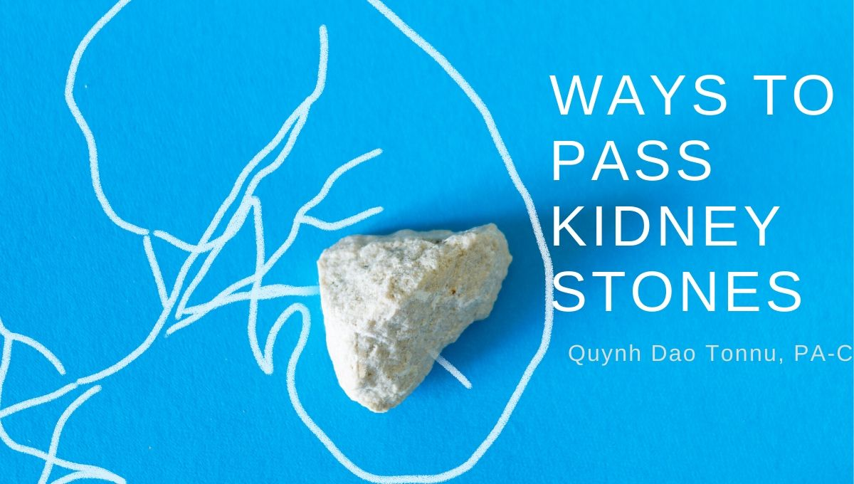 Ways To Pass Kidney Stones Advanced Urology Institute