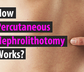 How Percutaneous Nephrolithotomy Works?