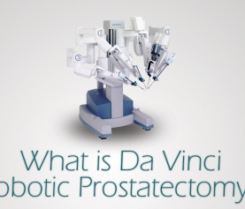 What is Da Vinci Robotic Prostatectomy?