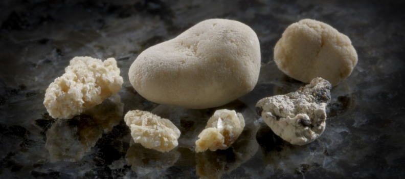 Kidney Stones – Environmental Factors Can Increase the Risk