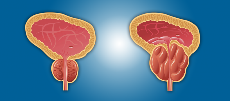 The Prostate Gland